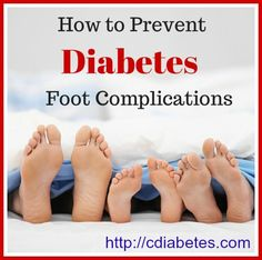 Non-healing foot ulcers are common in people with type 2 diabetes.1 Skin ulcers that result from diabetes foot complications can cause other, more serious problems, such as amputation.1 You can prevent complications by carefully checking your feet on a daily basis, and having your healthcare provider perform a foot exam once a year. | cDiabetesrecipes.com