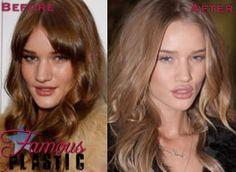 Rosie Huntington Whitely Had Plastic Surgery / Nose Job / Lip Injections