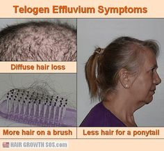 How to stop chronic telogen effluvium hair loss. Natural treatment ideas for men and women. Learn about symptoms, blood tests and how a poor diet can cause it. Hair Growth Cycle, New Hair Growth, Hair Growth Tips, Losing Hair Women, Hair Loss Women, Androgenetic Alopecia, Thin Hair Styles For Women, Stop Hair Loss, Hair Regrowth