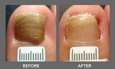 Watch This Video Mind Blowing Home Remedies for Toenail Fungus that Really Work Ideas. Astonishing Home Remedies for Toenail Fungus that Really Work Ideas. Toe Fungus Treatment, Fingernail Fungus Treatment, Toenail Fungus Remedies, Nail Treatment, Fungal Nail Infection, Nagel Blog, Tatoo, Massage Therapy, Fungi