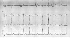 Electrocardiogram or EKG is is a test that checks for problems with the electrical activity of your heart. An EKG translates the heart's electrical activity into line tracings on paper. The spikes and dips in the line tracings are called waves.