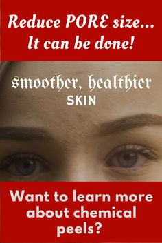 Chemical peels can make improvements to the skin that are anti-aging and can also reduce scars. Salicylic chemical peels can also reduce pore size. Helping Other People, Helping Others, Reduce Pore Size, Chemical Peel, Skin Cream, Healthy Skin, Whitening, Anti Aging