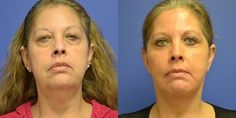 Face Aerobics Exercises Are Stunningly Effective For Regained Youth And A More Youthful Looking Skin
