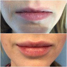 #TransformationTuesday - Come see our nurse injector, Jennifer, to #Plump your pretty #pout!! This is 1 mL of Juvederm Ultra XC before and immediately after injection. Book your consultation here: http://admireplasticsurgery.com/