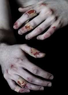 Hands - Injuries