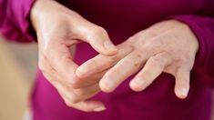 Exercise For Rheumatoid Arthritis, Rheumatoid Arthritis Treatment, Types Of Arthritis, Symptoms Of Arthritis, Diet For Arthritis, Arthritis Hands, Arthritis Pain Relief, Natural Remedies For Arthritis, Vitamin D Deficiency