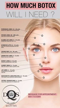 Drama Queen Studios well trained staff will take care of your every need from Cosmetic Injections, Dermal Fillers, and HydraFacialMD. Face Fillers, Botox Fillers, Dermal Fillers, Botox Injection Sites, Botox Injections, Skin Care Treatments, Facial Treatment, Facial Aesthetics, Medical Aesthetics