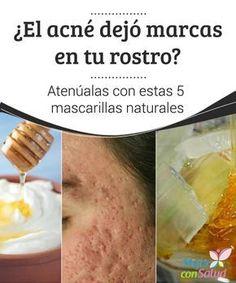 ¿El acné dejó marcas en tu rostro? #Atenúalas con estas 5 mascarillas naturales El #acné crónico puede ser tan agresivo con la #piel que le genera #lesiones y marcas a sus tejidos. Descubre 5 #mascarillas naturales para atenuarlas. #Belleza