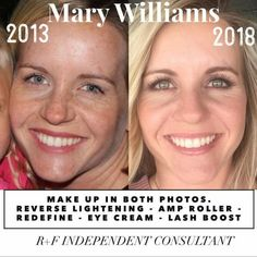 Every time, these before & after photos get me every time!! Progress photos are so crucial to track your results!! 5 years older...or 5 years younger, the choice is YOURS! ksnodgrass1.myrandf.com