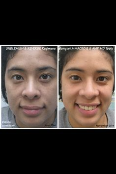Rodan and Fields Unblemished Regimen, Micro E Tool, and AMP MD Roller was used to achieve these results.