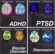 Normal , depression, ADHD, ptsd, and bipolar disorder brain differences. Stress Disorders, Mental Disorders, Bipolar Disorder, Psychology Disorders, Adhd Brain, E Mc2, Psychology Facts, Psychology Meaning, Med School