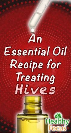 Awaken Yourself about the TOP 7 TEA TREE Oil BENEFITS. TEA TREE Do It Yourself recipes Essential oils for Hives include Tea Tree, Myrrh, Peppermint, Lavender, Lemon and Helichrysum Essential Oil. A blend Oil recipe can help heal hives fast. Essential Oil For Hives, Essential Oils Allergies, Helichrysum Essential Oil, Essential Oils For Babies, Doterra Essential Oils, Essential Oil Blends, Easential Oils, Tea Tree Oil, Oil Recipe