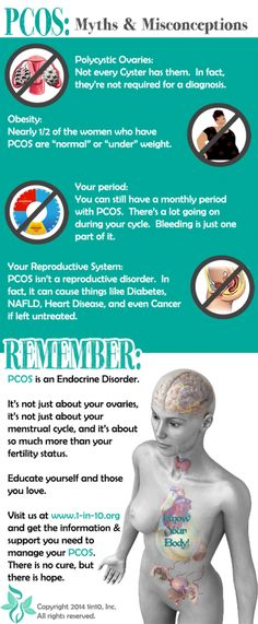 #PCOS Myths & Misconceptions