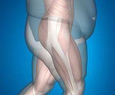 Iraq War Vet Discovers Shocking Trick to 'Kill' Belly Fat
