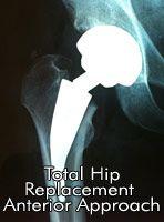 Orthopaedic Surgeon Hip and Knee #orthopaedic #healthcare