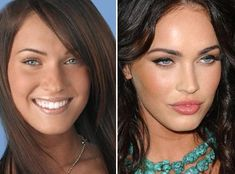 megan fox - had a nose job to change her look. I'm not trying to tear apart celebrities. I am just pointing out NO ONE is perfect. They get surgery and other augmentations to be more marketable. Personally, I think she looked better before. Megan Fox Plastic Surgery, Plastic Surgery Before After, Megan Fox Before Surgery, Cheek Implants, Lip Augmentation, Kenya Moore, Mascara Tips, How To Apply Mascara, Veronica Lake