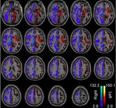 Neuroscientists now assert that there is no evidence within brain imaging that indicates some people are right-brained or left-brained. For years in popular culture, the terms left-brained and right-brained have come to refer to personality types, with an assumption that some people use the right side of their brain more, while some use the left side more. Researchers have debunked that myth through identifying specific networks in the left and right brain that process lateralized functions.
