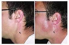 frey's syndrome - Bing Images Salivary Gland, Ear, Tattoos, Bing Images, Tatuajes, Tattoo, Tattos, Tattoo Designs