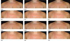 New Bestseller Clinique Even Better Essence Lotion - skincare #beauty #skin_care #Clinique #Essence