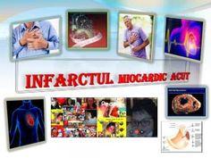 Infarctul miocardic acut poate fi definit din diferite perspective în funcţie de caracteristicile clinice, electrocardiografice (ECG), biochimice şi patologice.\n