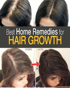 Beauty&fitness with A.bari: Best Natural Solution For Hair Growth! How To Grow Your Hair Faster, Make Hair Grow, How To Make Hair, How To Regrow Hair, Grow Long Hair, Increase Hair Volume, Increase Hair Growth, Hair Thickening Remedies, Thicken Hair Naturally
