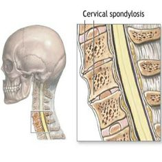 Top 5 Cervical Spondylosis Symptoms. A repin from Sarah Sullivan's board. http://www.findarthritistreatment.com/exercises-to-help-cope-with-cervical-spondylosis/
