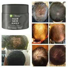 Order Online @ >>>  wrapmejenne.com With essential vitamins, minerals, and plant-based nutrients, Hair Skin Nails enhances your own natural collagen and keratin production, supports healthy cell growth, and boosts your body's free radical fighting defenses.  It's optimal nourishment to look your beautiful best from the inside out! ·  Boosts your natural collagen and keratin production ·  Supports the body's defenses against free radical damage ·  Moisturizes while enhancing skin's…