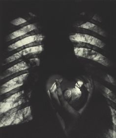 Pierre Jahan was a French photographer and illustrator best known for his surrealist images and photographs of Paris. Hearts And Bones, Meaningful Pictures, Summer Rain, French Photographers, Do You Like It, Man Ray, Old Art, Heart Art, Photomontage