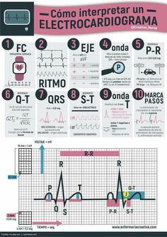 ¿Cómo interpretar un electrocardiograma?