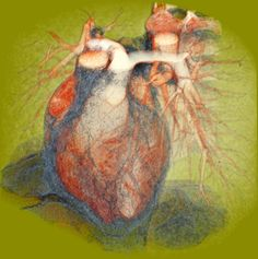 Cardiac CT   Flickr - Photo Sharing!
