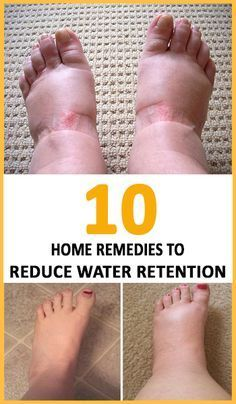 Watch This Video Enduring Reduce Water Retention With This Natural Remedy Ideas. Darling Reduce Water Retention With This Natural Remedy Ideas. Foot Remedies, Herbal Remedies, Health Remedies, Holistic Remedies, Hair Remedies, Daily Health Tips, Health And Fitness Tips, Health Diet, Health Exercise