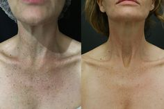 Houston facial cometic fraxel surgeons