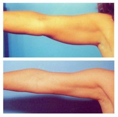 Arm liposuction works great.