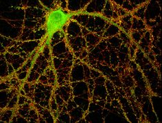Researchers from Princeton University and the University of California-San Diego recently found that an immune-system protein called MHCI, or major histocompatibility complex class I, moonlights in the nervous system to help regulate the number of synapses, which transmit chemical and electrical signals between neurons...