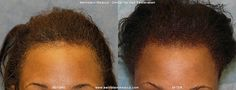 www.alopeciatreatment.co  Patient BOI is an African-American female with hair loss confined to her frontal hairline and temples. This pattern, called Alopecia Marginalis, is relatively common and is often, but not always, caused by persistent traction on one�s hair. BOI has medium fine hair and a donor density of 1.8 hairs/mm2. Results after only one hair transplant session of 1,698 follicular unit grafts.View Patient BOI's hair transplant photo set