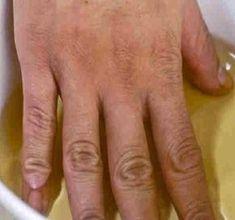 Bizonyos kor után minenkinek elmerevednek az ujjai, a szerencsésebbeknek nincsenek fájdalmai, de a kezük nem úgy működik, mint korábban.