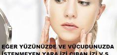 7 günde etkisini gösteren doğal krem yapımı.Bu doğal krem sayesinde cildinizdeki kırışıklıklara veda edin..