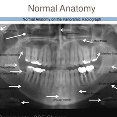 Normal Anatomy on the Panoramic Radiograph Dentaltown - Anatomical landmarks on a Panoramic radiograph Dental Assistant Study, Dental Hygiene Student, Dental Care, Dental Hygienist, Cosmetic Dentistry Procedures, Implant Dentistry, Dental Implants, Panoramic Radiograph, Dental World