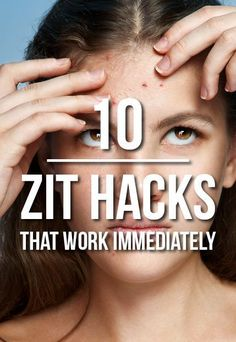 Zit remedies that work right away - must read!