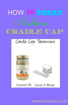 How to treat newborn cradle cap using coconut oil with step by step instructions. This worked really well after one treatment. Baby On The Way, Along The Way, Cradle Cap Remedies, Cradle Cap Treatment, Baby Health, Baby Time, Baby Hacks, Healthy Kids