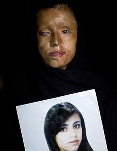 Burned for dating. Before and after. This is Sharia Law.