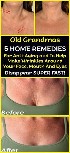 Old Grandmas 5 Home Remedies For Anti-Aging and To Help Make Wrinkles Around Your Face, Mouth And Eyes Disappear Super Fast – Care – Skin care , beauty ideas and skin care tips Beauty Care, Beauty Skin, Health And Beauty, Diy Beauty, Beauty Ideas, Homemade Beauty, Beauty Guide, Face Beauty, Healthy Beauty