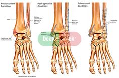 Pathophysiology Of Ankle Fracture