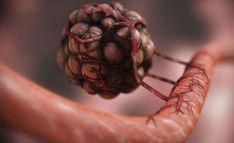 Important Video - No Cancer Cells but Parasites ? Diagnose Krebs, Videos, Cancer Cells, Wallpapers, Model, Blog, Breast Cancer, Scale Model