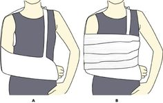 How to make a sling or splint #Senior Girl Scout First Aid Badge