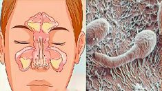 Similarly, nasal congestion occurs due to other diseases such as sinusitis, rhinitis and also the common cold, although the latter is the simplest of the Nose Problems, Nasal Congestion, Traditional Chinese Medicine, Holistic Remedies, Natural Medicine, Health And Beauty, The Cure, About Me Blog, Healthy