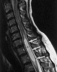 RESEARCH shows that surgery outcomes are highly dependant on whether or not a patient has a syrinx (a cyst like cavity within the spinal cord, aka syringomyelia) this implies a less favorable response to surgical intervention than a patient who does NOT have a syrinx when having surgery. This may also indicate the desire for earlier intervention for Chiari patients since syringomyelia tends to begin or progress as the patient yrs go by.