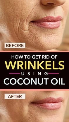 Learn how to get rid of wrinkles using coconut oil along with 7 other powerful coconut oil recipes for wrinkles. All of the ingredients used below in the different recipes are 100% natural and will help you start seeing results very fast! - Skin Care Tips Beauty Care, Beauty Skin, Diy Beauty, Beauty Advice, Homemade Beauty, Beauty Ideas, Face Beauty, Beauty Makeup, Best Beauty Tips