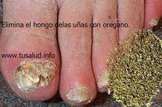 Hongos en las uñas: elimínalos con orégano. - TuSalud.Info