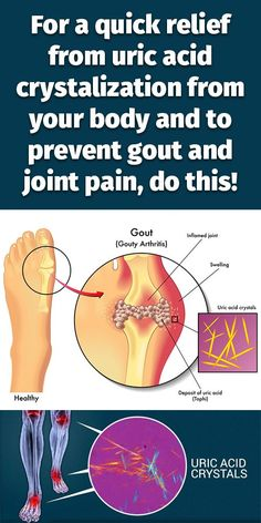 acute gout attack wiki can your uric acid level be too low symptoms of high levels of uric acid